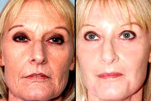 vitaldermax prima e dopo